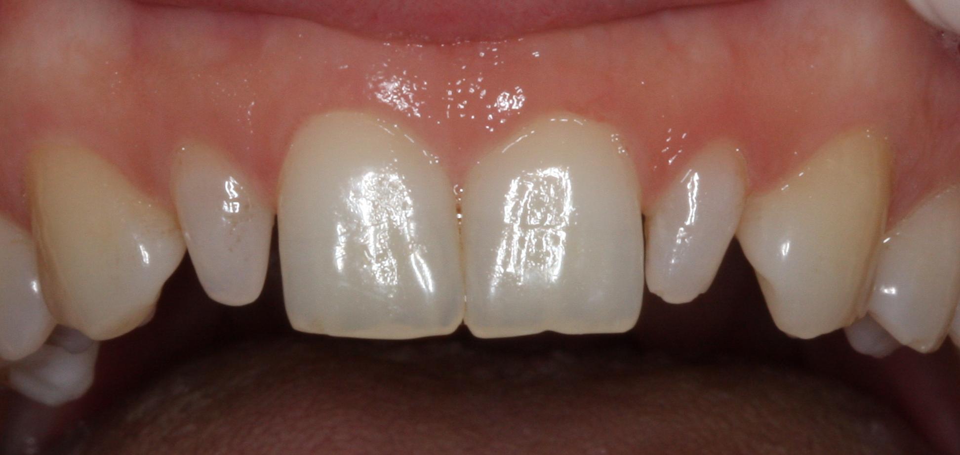 Tratamiento de dientes conoides