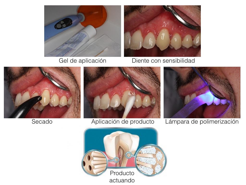Sensibilidad Dentaria