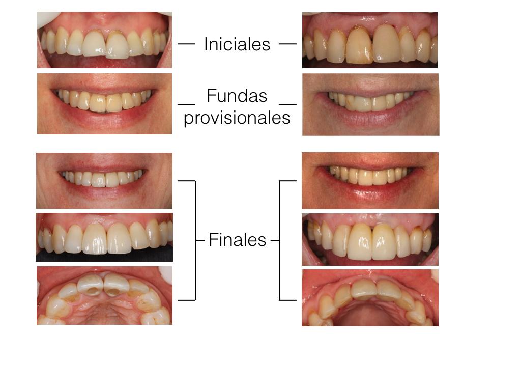 Reposición de incisivo con implante (estética dental)