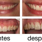 Cirugía estética periodontal (de encía)